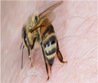 نصائح صحية| خطوات بسيطة  لعلاج لدغات النحل طبيعيا