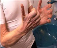 «التصلب الجانبي الضموري» يسبب مرضا قاتلا يصيب البشر