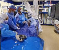 إجراء قسطرة قلبية لـ٤٥٥ مريضًابمستشفى الزقازيق العام