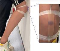 تطوير جلد اصطناعي يستشعر الإصابة
