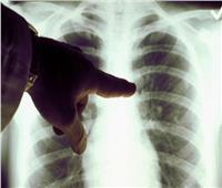 أعراض بسيطة قد تكون مؤشرًا للإصابة بـ سرطان الرئة