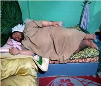 «وزنه 270 كيلو» ولم يغادر البيت منذ سنوات.. مريض الغربية يحلم بالعلاج