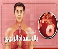 إنفوجراف | أعراض الإصابة بالانسداد الرئوي