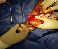 نجاح استئصال تمدد بالأوعية الدموية لمريض فشل كلوي بمستشفى السنبلاوين