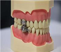 «قفل الأسنان».. أحدث الطرق للتخلص من السمنة