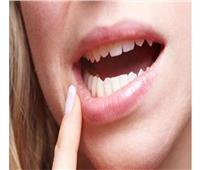 3 علامات تدل على الإصابة بسرطان الفم ..تعرف عليهم