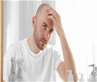 تشير لمرض خطير .. خبيرة روسية تحذر الرجال من تقشير الرأس