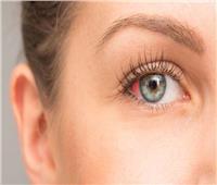 تخلص من احتقان العين الدموي في 6 خطوات