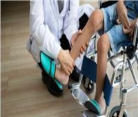 فحوصات طبية لـ48 طفلًا مصابًا بضمور العضلات في بني سويف