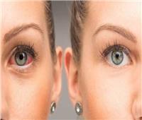 4 وصفات منزلية لعلاج جفاف العين