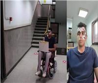 توجيه الكرسي المتحرك باستخدام حركة العين.. مشروع تخرج طلاب حاسبات عين شمس