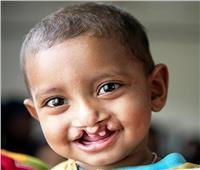 جامعة أسيوط تُطلق قافلة مجانية لعلاج الأطفال المصابين بشق «الشفة» بليبيا