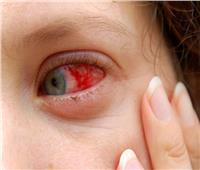 «تبكي دم».. حالة نادرة تتسبب في نزيف المرأة من عينيها