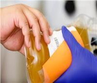 الصحة تكشف مخاطرعدم حصول مرضى «الهيموفليا والكبد» على مشتقات البلازما