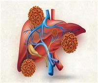 شاهد  «100 مليون صحة» خفضت الإصابة بالكبد بنسبة 92%