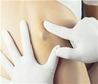 الأورام الشحمية.. أسبابها وعلاجها