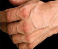 أهمها ممارسة الرياضة.. أسباب بروز عروق اليدين