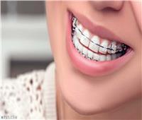 أضرار تقويم الأسنان ومخاطر استخدامه