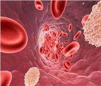 أعراض انخفاض الصفائح الدموية بالجسم