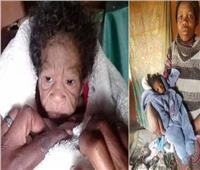 ولادة «طفلة مسنة» بمتلازمة هتشينسون جيلفورد بجنوب أفريقيا