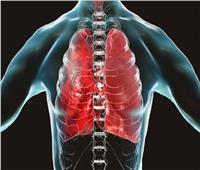 علماء أمريكيون يتوصلون لأسباب الإصابة بسرطان الرئة بين غير المدخنين
