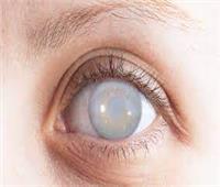 استشاري جراحة عيون: زراعة العدسات لا تناسب كل المرضى