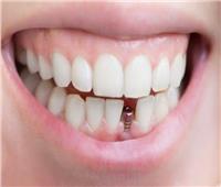 «تورم اللثة».. أضرار تركيب الأسنان الثابتة