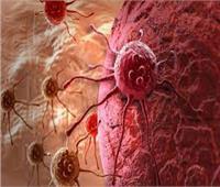 العلماء ينجحون في كشف أسرار نوع خطير من الأورام