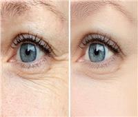 تمارين اليوجا للتخلص من التجاعيد حول العينين