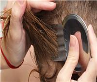 قبل دخول المدارس.. 6 نصائح طبيعية للتخلص من حشرات الشعر