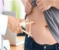 استشاري جراحات السمنة: معدل أمان تحويل المسار 100% في هذه الحالة |فيديو
