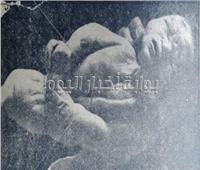 على يد طبيب مصري.. فلسطينية تلد «الطفل المسيخ» بنصف إنسان !