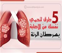 إنفوجراف| 5 طرق لحماية نفسك من الإصابة بسرطان الرئة