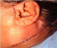 مستشفي القاهرة الجديدة تنجح في إجراء جراحتين لإزالة الأورام