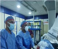 إجراءقسطرة قلبية لـ660 مريضًابمستشفي الزقازيق العام