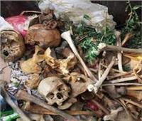 «الداخلية» عنالعثور على جماجم بشرية داخل القمامة: «خاصة بطلبة الطب»