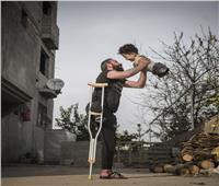 صورة بمليون كلمة.. طفل سوري بدون أطراف يطير الى أحضان والده