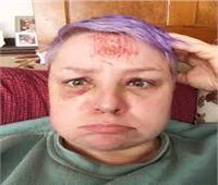 نجاة امرأة بأعجوبة بعدما سقطت من الطابق الرابع وهي نائمة  صور