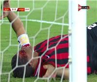 الدوري المصري  إصابة قوية لسعد سمير خلال مباراة فيوتشر وفاركو.. فيديو