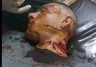 مجهولون يعتدون على وكيل رجل أعمال كويتي في إمبابة